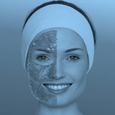 Phyto Plasma Therapy for environmentally compromised skin.